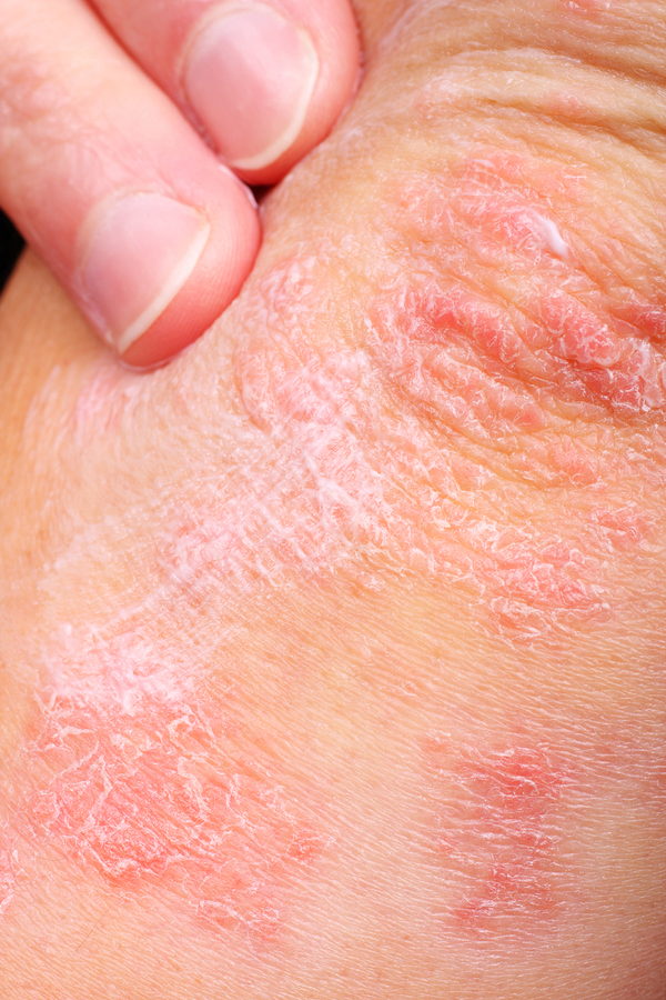Psoriasis in Boise, ID