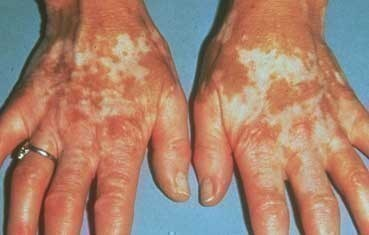 Vitiligo_symptoms_hands.jpg