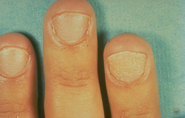Alopecia-areata_symptoms-fingernails.jpg