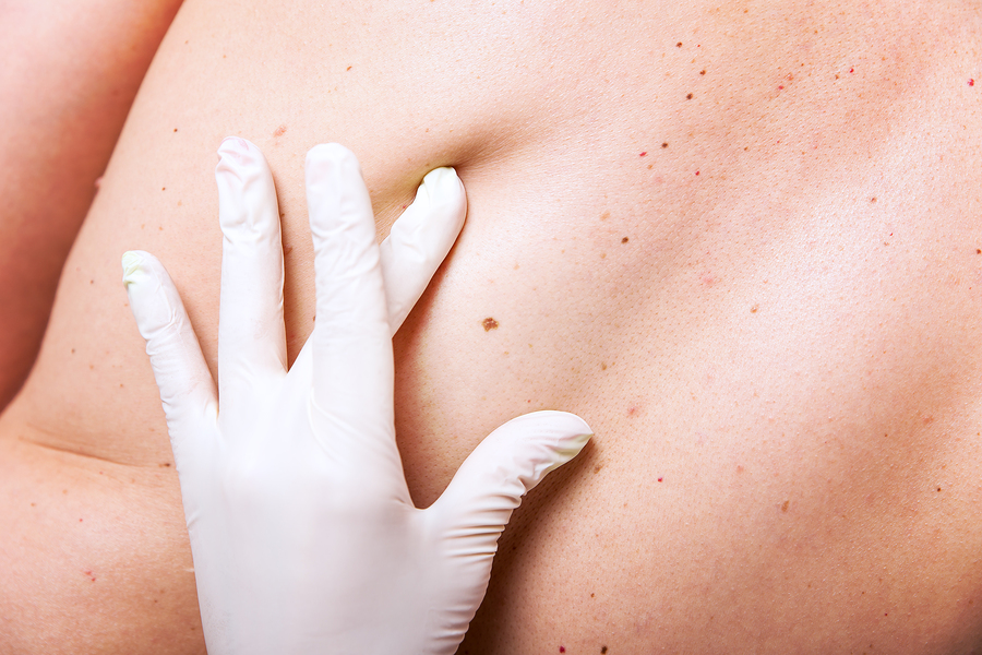 Tips To Prevent Skin Cancer And What To Look For Dermatologist In Boise Id